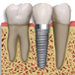 Dental Implants, City Dental, Bangor