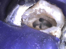 Microscope view of root canal openings