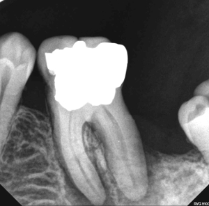 Infected molar, Before and After Treatment