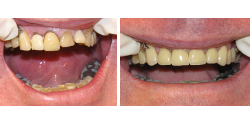 Cosmetic Dental Treatment North Wales