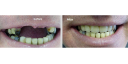 Replacement of Teeth Cost, North Wales
